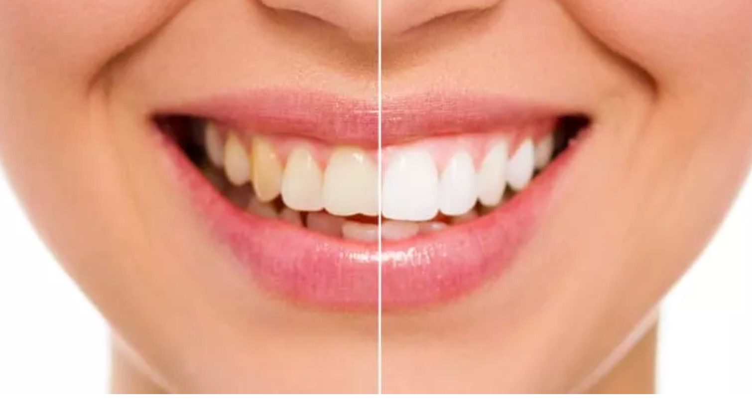 Woman Smiling with White Teeth in Virginia Beach